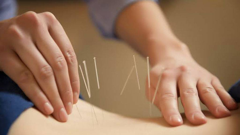 Acupuntura é poderosa contra dor na lombar