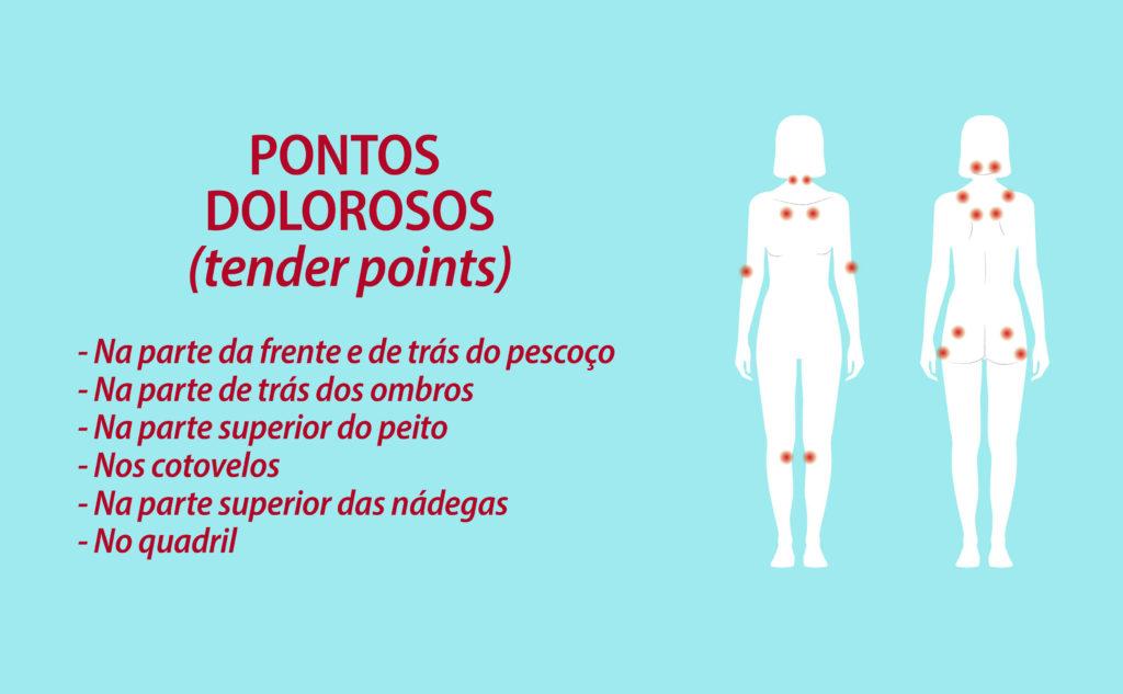 """Os """"pontos dolorosos"""" da fibromialgia estão: Na parte da frente e de trás do pescoço; Na parte de trás dos ombros; Na parte superior do peito; Nos cotovelos; Na parte superior das nádegas. No quadril;"""