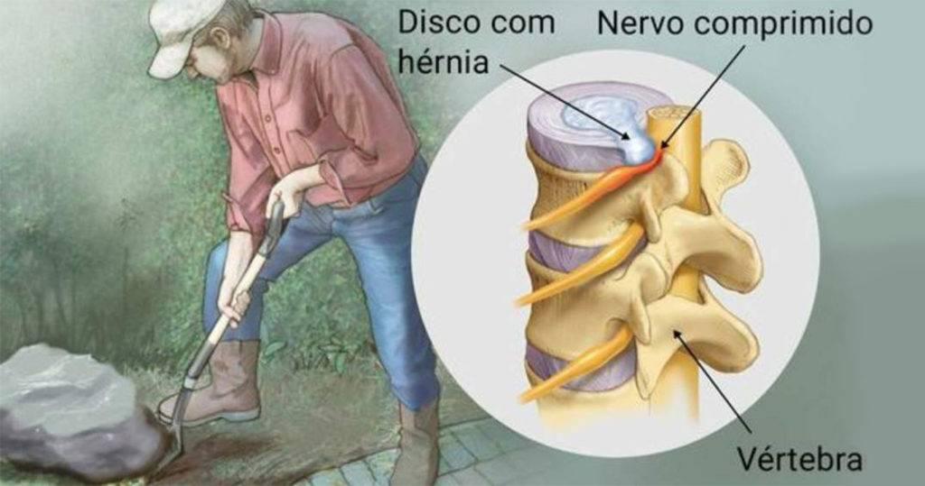 6-hérnias-de-disco