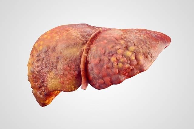 gordura-no-fígado