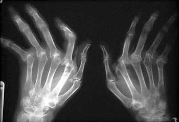 mãos-tortas-artrite